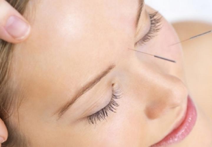 acupuntura-lifting-facial-la-cabina-de-veronica